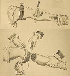 Illustration of Liston surgiccal knives.
