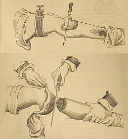 Illustration of Liston surgiccal knives.