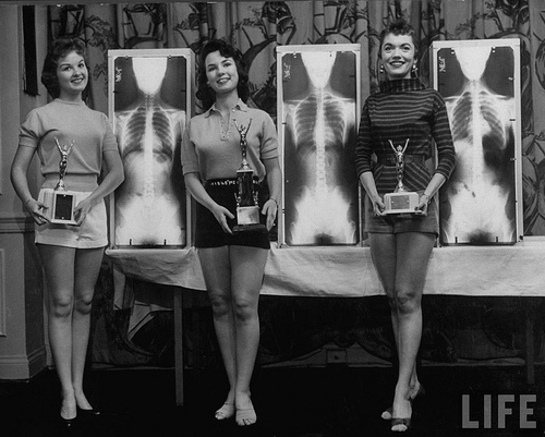 Winners of the Miss Perfect Posture contest at chiropractors convention in Chicago, May 1956, pose with their trophies and x-rays